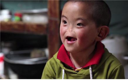 글로벌 프로젝트 나눔(HD) [코 없는 몽골 아이의 방문]