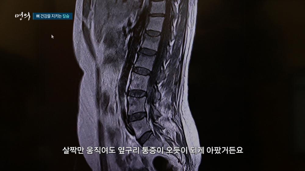 명의 - 뼈 건강의 위험신호 - 골감소증